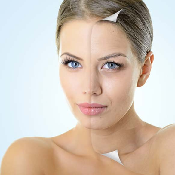 Peels and Resurfacing at Cedar Therapy Salons