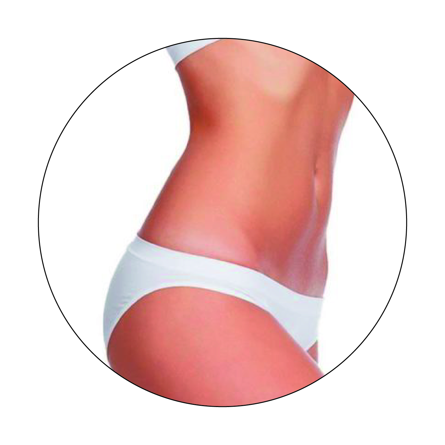 Non-Surgical Fat Removal Combination Approach at Cedar Therapy
